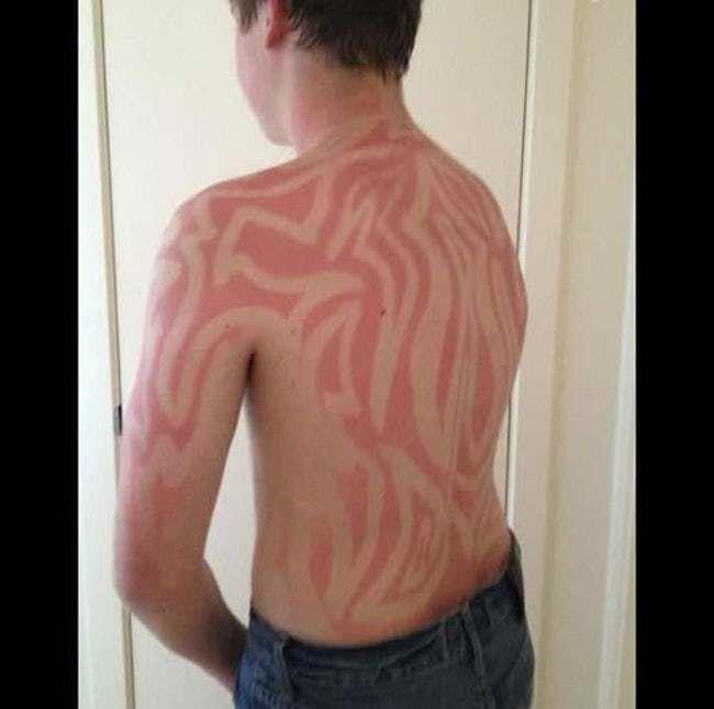 Най-Скандалните Слънчеви Изгаряния, Които Сте Виждали Някога 8