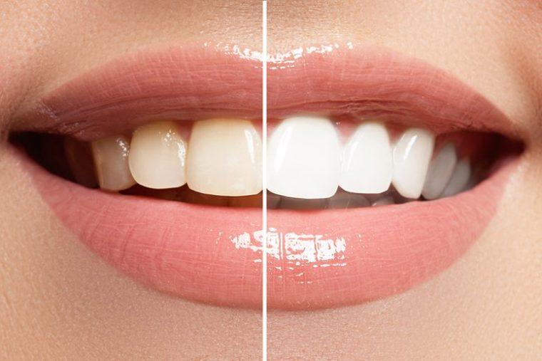 12 Комбинации, Които Напълно Премахват Зъбния Камък От Зъбите Ви 8