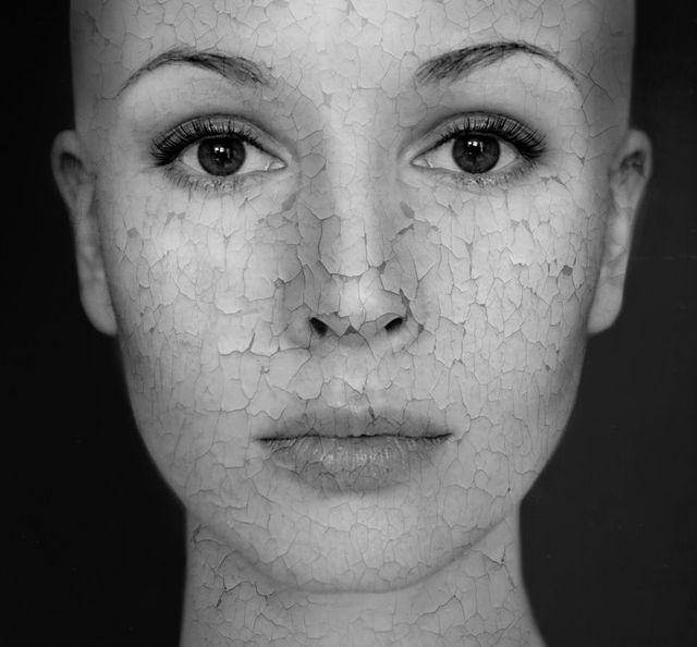26-Годишна Женa С Рядко Заболяване, Променя Стереотипите За Красота 54