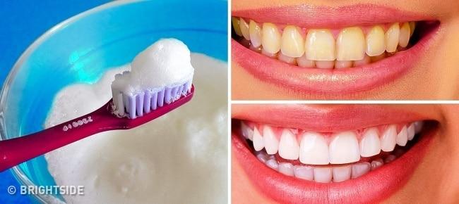 10-Те Най-Добри Начина За Естествено Избелване На Жълти Зъби У Дома! 8