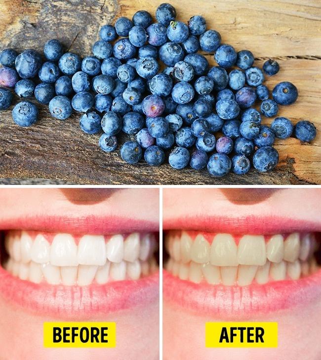 Топ 10 Храни, Които Сериозно Увреждат Зъбите Ви 30