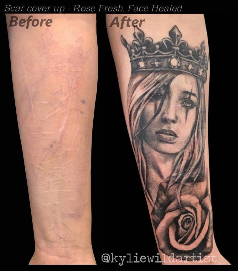 Тези татуировки, превърнаха белезите в произведения на изкуството 59
