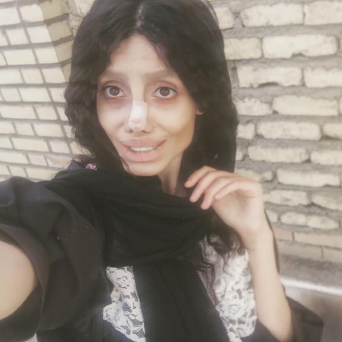 Тя мечтаеше да прилича на Анджелина Джоли и се подложи на 50 пластични операции, но ето какво стана! 59
