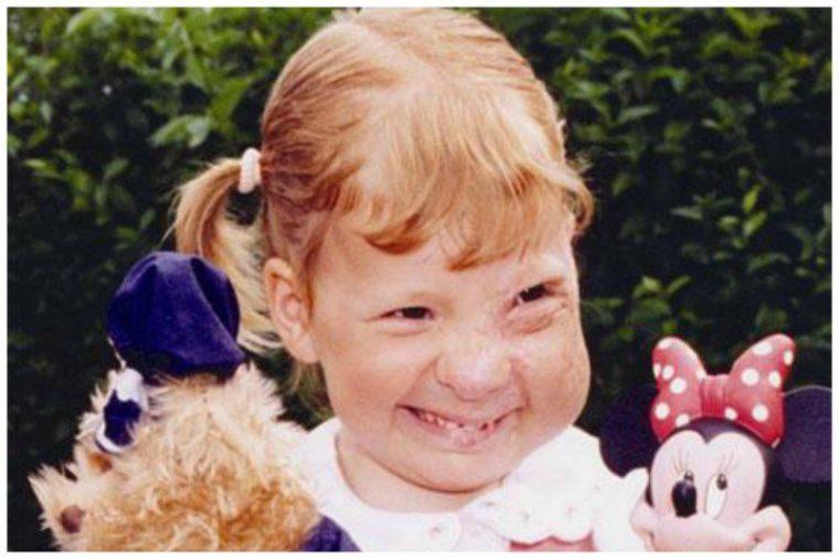 Историята на това дете ще те просълзи.. От грозното пате до истинска красавица.. невероятна трансформация! 54