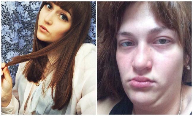 Тези 22 момичета демонстрираха тъмната страна на красивите снимки в социалните мрежи.. Шок! 24