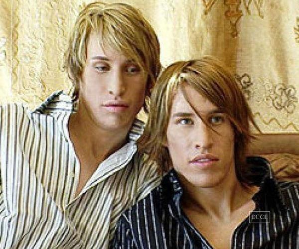 Тези близнаци платиха колосална сума пари за да заприличат на Брат Пит.. Няма да повярваш как изглеждат сега.. 35