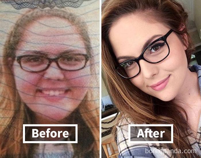 Брутална промяна! Те споделиха как са изглеждали преди и след като са отслабнали.. шокиращо 13