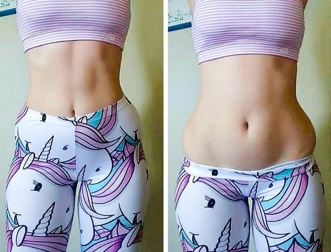 Вижте новата тенденция в Инстаграм: Момичетата доказват, че нямат идеални тела 14