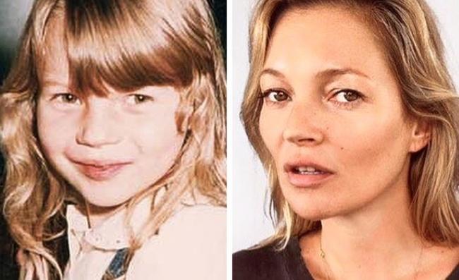 Ген или пластична хирургия? 12 снимки на известни личности, които са били красавици от детството 59