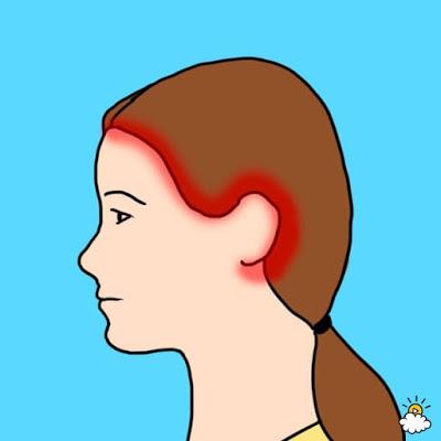 Най-често срещани видове главоболие и техните причини 18