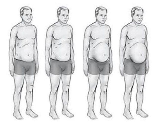 За да разберете какво хормонално разстройство сте изразили, достатъчно е да погледнете тялото си 16