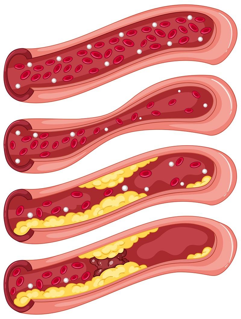 Как да се предпазим от животозастрашаващите кръвни съсиреци? 33